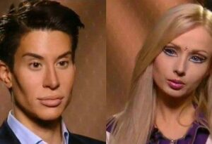 تصاویری از دو باربی زن و مرد و ماجرای عمل های زیبایی بیش از حد (+عکس)